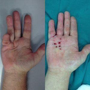 Контрактура Дюпюитрена до и сразу после игольной апоневротомии (2)(оригинальный)
