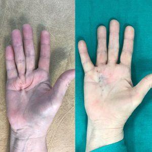 Контрактура Дюпюитрена до и сразу после игольной апоневротомии (3)(оригинальный)