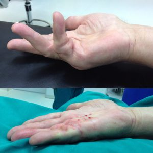 Контрактура Дюпюитрена до и сразу после игольной апоневротомии (4)(оригинальный)