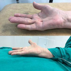 Контрактура Дюпюитрена до и сразу после игольной апоневротомии(оригинальный)