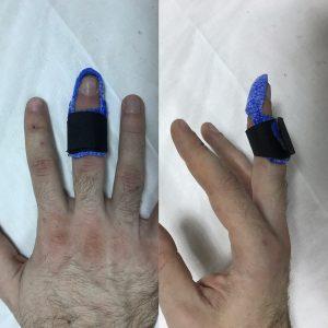 Ортез для лечения разрыва сухожилия разгибателя (оригинальный)