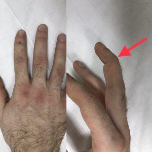 Типичная картина подкожного разрыва сухожилия разгибателя в 1 зоне (оригинальный)